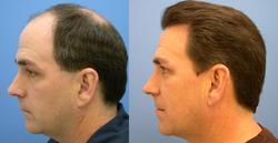Hair Replacement Services, For Personal