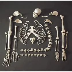 Disarticulated Life Size Skeleton for Medical (MBBS) Students