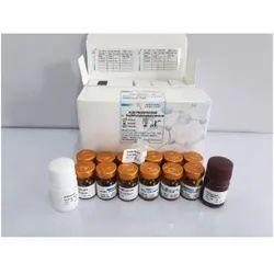 Acid Phosphatase Reagent Kinetic Method