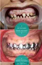 Full Mouth Rehabilitation Service