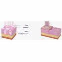 Co2 Fractional Laser Series