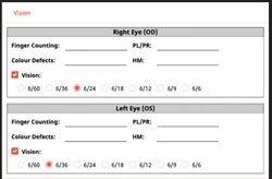 eye Observation & Glass Prescription For Ophthalmologists