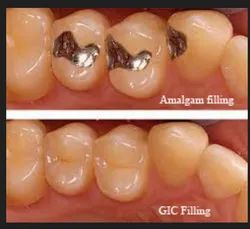 Restorations Fillings Dental Treatment Service