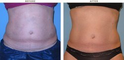 Coolsculpting Treatment for Tummy Reduction in chennai