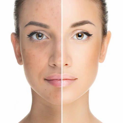 Female Stem Cell Skin Rejuvenation Treatment Chennai