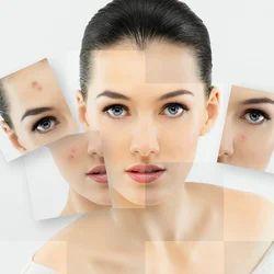 Skin Care Treatment In Rishikesh