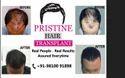 Pristine Hair Clinic Treatment Service