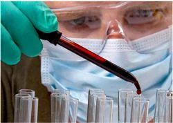 Serology Testing Service