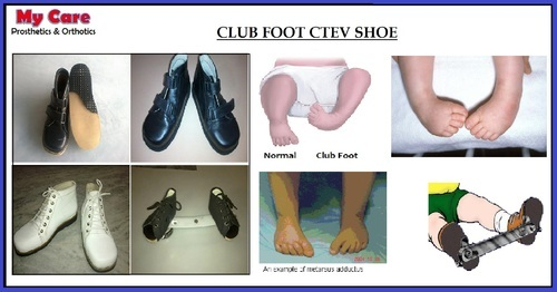 Brown Male Club Foot Ctev Shoe My Care Prosthetics And