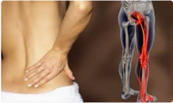 Sciatica Physiotherapy Treatment