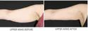 Body Shaping Treatment In Hands