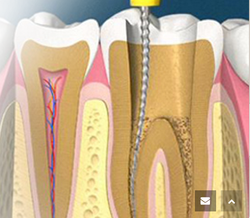 Root Canal Treatment in Chandigarh, रूट कैनाल
