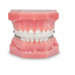 Dental Teeth Model With Metal Bracket