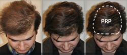 PRP For Non Surgical Hair Regrowth