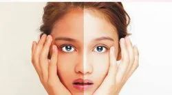 Glutathione Skin Whitening Treatment