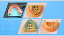 Zirconium Teeth Best Services