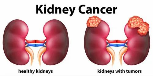 Allopathic Kidney Cancer Treatment Services North Bangalore Hospital Id 20437286012