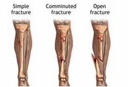 Emergencies Fractures Treatment Service