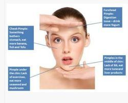 Acne Homeopathic Treatment