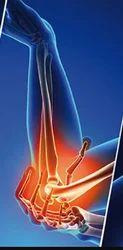 Elbow Osteoarthritis Treatment