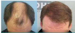 Direct Hair Transplant Services