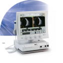 Tomey UB-8000 Ultrasonic B- Scanner (B-Scan)