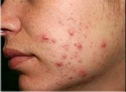 Pimples Treatment Service