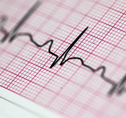 ECG Chart Paper at Best Price in India