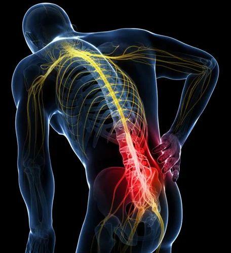 Sciatica Back Pain Lumbago Slip Disc Treatment Service in