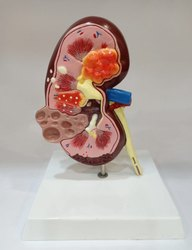 Kidney Pathological Model