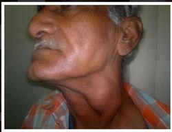 Hypothyroidism Treatment Services