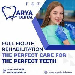 White Laser Treatment Full Mouth Rehabilitation, For Arya Dentals