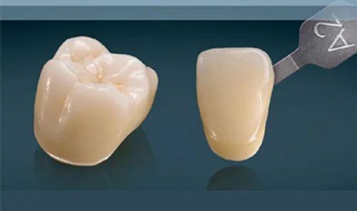 3M Lava Monolith Dental Crown | D V G S DENTAL LAB | Nursing