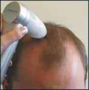 Investigative Dermatology Hair Analysis