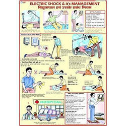 Shock Treatment Chart