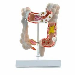 Colon Pathological Model