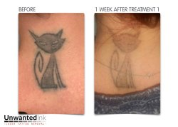 Laser Tattoo Removal Treatment in chennai