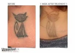 Tattoo Removal Treatment in chennai