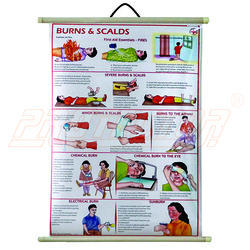 Safety Chart for Burns and Scalds (Eng)