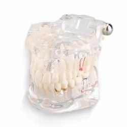 Dental Pathological Disease Implant Teaching Model