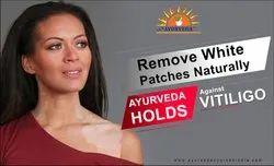 Ayurveda Treatment For Vitiligo