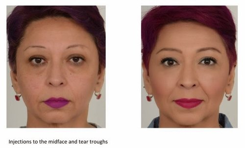 fillers treatment - Get Rid of Double Chin with Botox Treatment