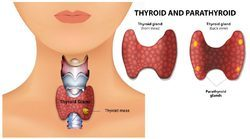 Treatment For Thyroid Disorders