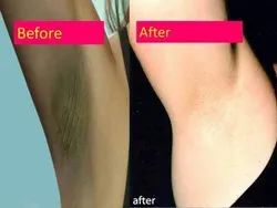 Q-Switched Underarms Whitening Laser Treatment