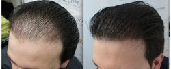 Low Cost Hair Transplant Solution