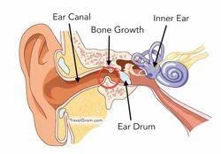 Surfers Ear Treatment Service