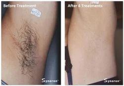 Female Laser Hair Reduction