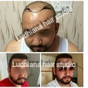 Hair Transplant Services For NRIs