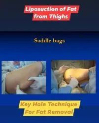Cosmetic Surgery Liposuction Surgery Treatment Services Of Thighs