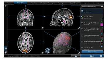 CranialMap Neuro Navigation Software - STRYKER INDIA PVT LTD